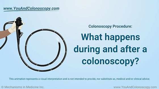 Animation - What happens during and after a colonoscopy?